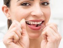 cabrillodental_blog_11