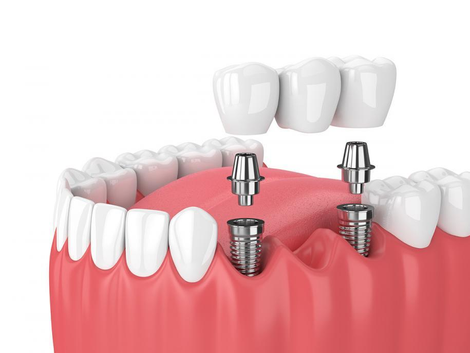 Dental implants in San Diego from Cabrillo Dental